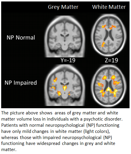 Woodward_Schiz Bull_NP normal and impaired psychosis fig
