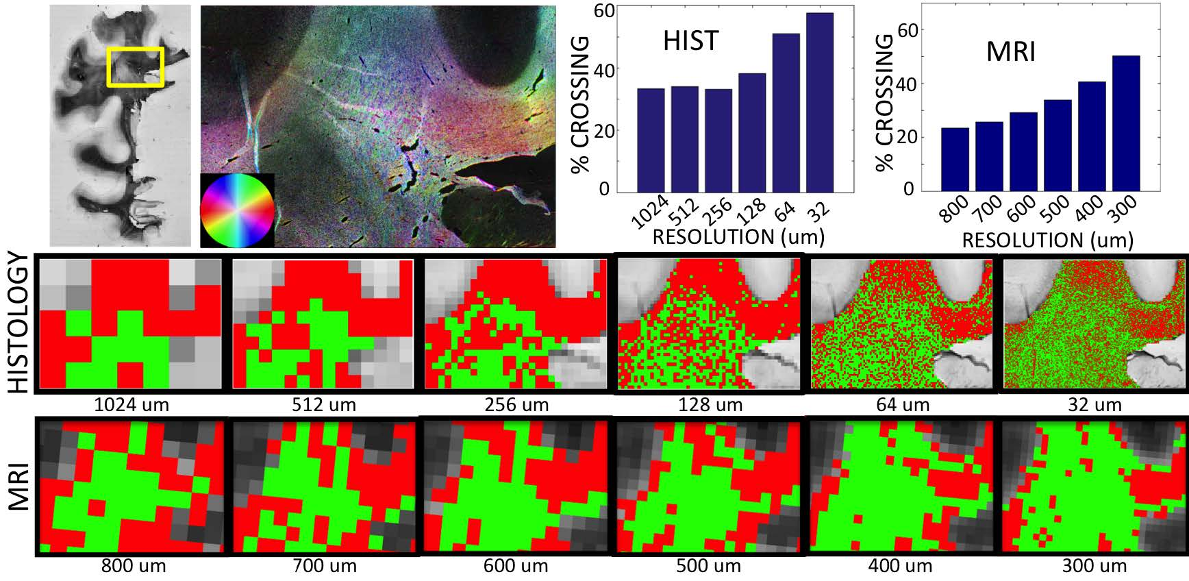 "Figure 1 shows the results of ST analysis in a region with in-plane fiber crossings. We find that, in both MRI and histology, the percent of voxels with crossing fibers actually increases as we increase the resolution. The middle and bottom rows highlight ""single"" fiber regions in red and ""crossing"" fibers as green, and qualitatively show that many regions with a ""single"" fiber population at a coarse resolution exhibit crossing patterns when processed at a finer resolution."