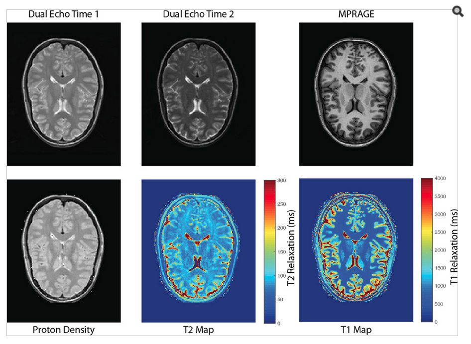 Intermediary results from image synthesis. The cited values for T2-relaxation in gray matter, white matter are approximately 100 and 80 ms respectively. The cited values for T1-relaxation in the gray matter and white matter are approximately 1350 and 800 ms respectively. These values appear consistent with the intermediary results of image synthesis.