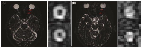 Comparison of the ON of a healthy control (A) and an MS patient with severe ON atrophy (B). Red lines in the axial images show the location of the coronal slices to the right.