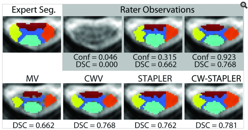 "Qualitative fusion results. A representative slice shows the effect of the additional confidence parameter on the output of both the voting and statistical fusion techniques. The three rater observations (one submitted empty) are shown. In this example, CWV and ""Best Pick"" would result in an identical segmentation."