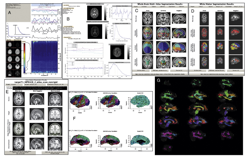 Quality analysis reports generally perform first level analyses, including diffusion tensor imaging (A) (Asman and Landman, 2013; Lauzon et al., 2013b; Lauzon and Landman, 2013; Papadakis et al., 2003; Whitcher et al., 2008), func- tional MRI (B) (Friedman and Glover, 2006), multi-atlas brain segmentation (C) (Asman and Landman, 2011, 2013; Ourselin et al., 2001, 2002), white matter labeling (D) (Plassard et al., 2015), registration to template spaces (E) (Fonov et al.,2009), FreeSurfer (F) (Fischl, 2012) and TRACULA (G) (Yendiki et al., 2011).