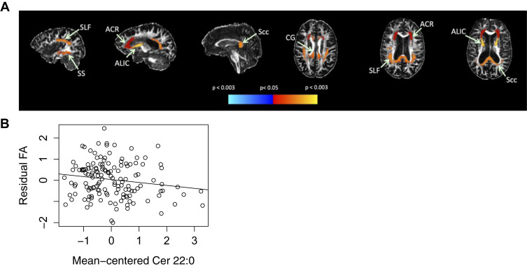 (A) Significant associations with plasma C22:0 and subsequent FA. (A) Red–yellow indicates higher plasma C22:0 associated with lower FA in white matter regions, while cyan–blue indicates higher plasma C22:0 associated with higher FA. Regional statistics are overlaid onto an FA image from a single subject; results are not corrected for multiple comparisons. (B) ACR FA by mean centered Cer 22:0. (B) Association between FA in ACR and Cer 22:0. The residual FA of ACR was calculated by regressing standardized FA on baseline age, sex, interval between blood draw and DTI, diabetes, BMI, scanner, and ratio of white matter lesions to intracranial volume. This is shown plotted against mean centered Cer 22:0 with a linear fit overlaid. Abbreviations: ACR, anterior corona radiata; ALIC, anterior limb of internal capsule; BMI, body mass index; CG, cingulum of cingulate gyrus; DTI, diffusion tensor imaging; FA, fractional anisotropy; Scc, splenium of corpus callosum; SLF, superior longitudinal fasciculus; SS, sagittal stratum. (For interpretation of the references to color in this figure legend, the reader is referred to the Web version of this article.)
