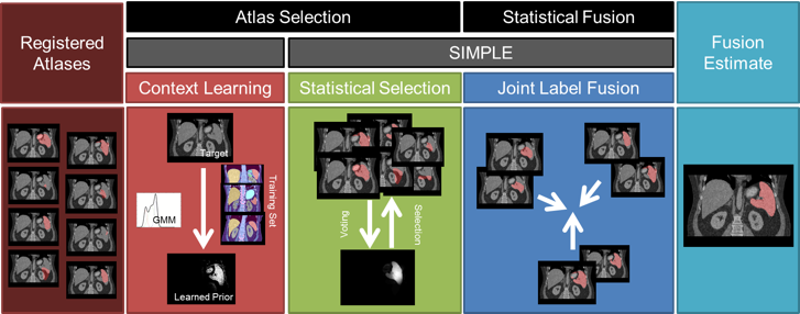 Flowchart of the proposed method. Given registered atlases with variable qualities, atlas selection and statistical fusion are considered as two necessary steps to obtain a reasonable fusion estimate of the target segmentation. The SIMPLE algorithm implicitly combines these two steps to fusion selected atlases; however, more information can be incorporated to improve the atlas segmentation, and a more advanced fusion technique can be used after the atlases are selected. We propose to (1) extract a probabilistic prior of the target segmentation by context learning to regularize the atlas selection in SIMPLE and (2) use Joint Label Fusion to obtain the final segmentation while characterizing of the correlated errors from among atlases.