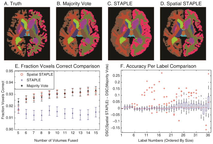 The spatial quality variation exhibited by registered atlases. A representative slice from the true labels (manually drawn) of a target brain is presented in (A). Four example observations of this slice can be seen in (B). The quality of the observations seen in (B) is compared to the true labels seen in (A) to construct the spatial quality variation heat maps presented in (C). Note that the spatial variation is independent of the actual labels of the brain.