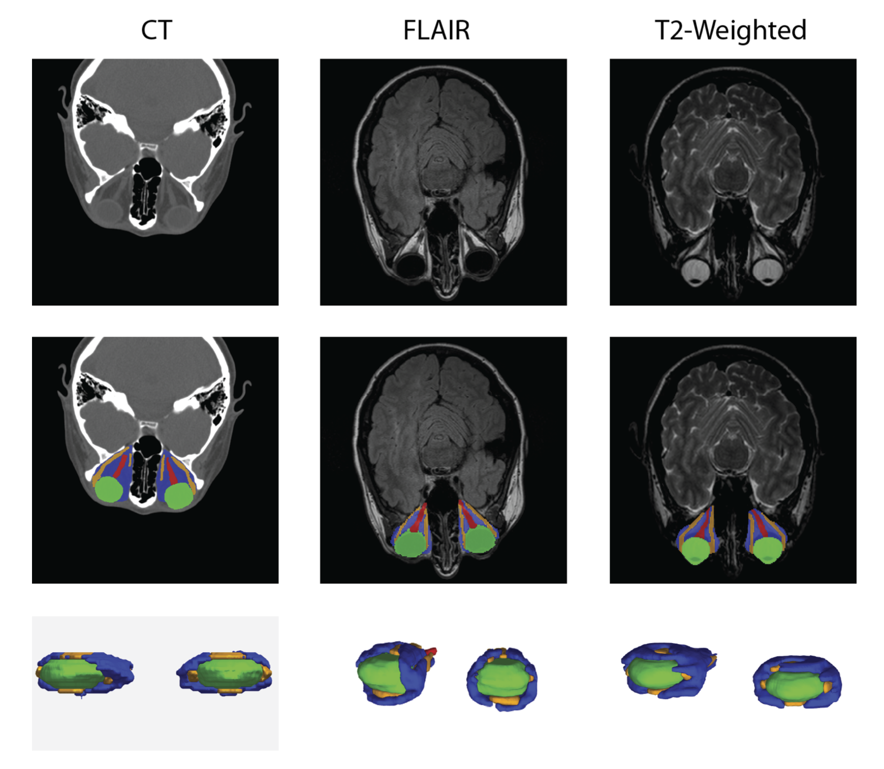 Example CT and MRI scans (top row) were expertly labeled (center row, lower row) and used in multi-atlas segmentation pipelines.