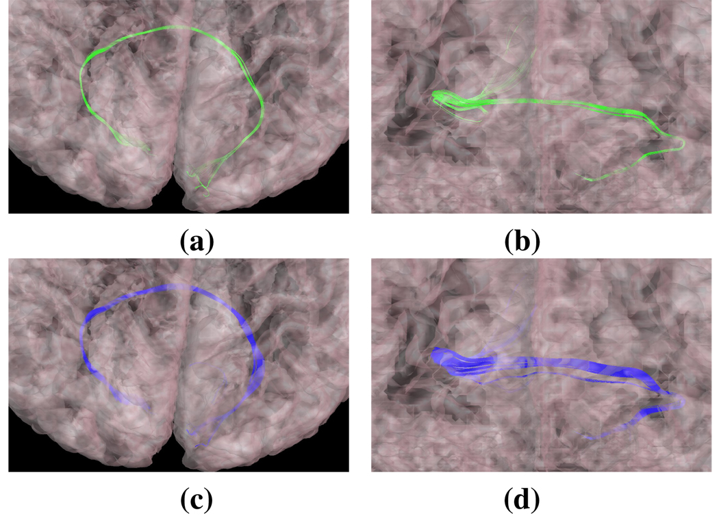 Orthogonal views of the Forceps Major delineated (a–b) manually and with our (c–d) automated processing. The semi-transparent cortical outer surface is also shown.