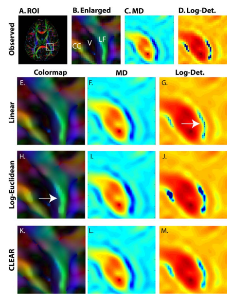 Interpolation of the genu of the Corpus Callosum (CC) and longitudinal fasciculus (LF) near the lateral ventricle (V): region of interest (ROI) selected on an orientation color coded anisotropy map (A,B). MD (C) and log-determinant (D) are shown at the reconstructed resolution. Upsampled (4 × 4) and interpolated contrasts are shown for linear (E-G), Log-Euclidean (H-J), and CLEAR (K-M) tensor interpolation. While the linear interpolation has smooth FA and MD (E,F), it exhibits abrupt changes in the determinant (G). The Log-Euclidean interpolation exhibits FA artifacts in regions of high anisotropy and curvature (H). CLEAR avoids all these problems