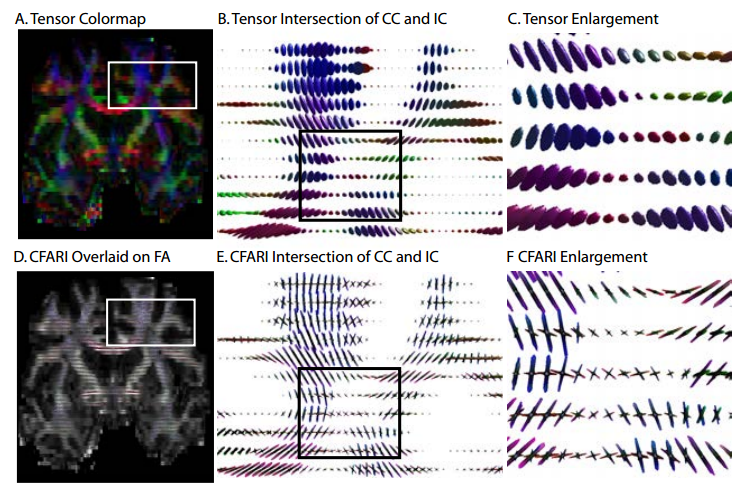 CFARI identified consistent intra-voxel structure in the crossing fibers between the corpus callosum (CC, lower left, red) and internal capsule (IC, blue, lower right). Conventional tensor modeling does not preserve the connectivity of the corpus callosum to the lateral hemispheres