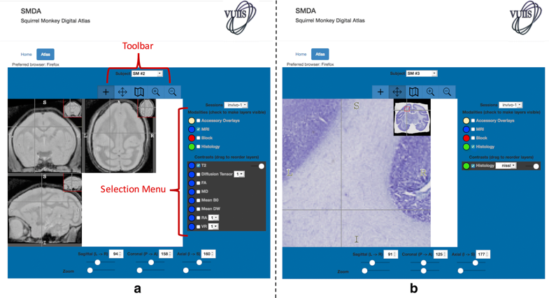 Atlas interface and functionality. The toolbars, menus, and display associated with MRI (a) and histology (b) modalities are shown