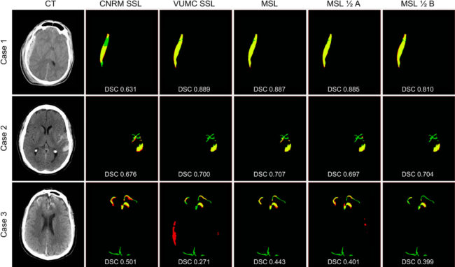 Figure 4 Results of automatic segmentations compared with manual gold standard for each training method for three cases representing a range of DSCs (top quartile — Case 1 (VUMC dataset), median — Case 2 (CNRM dataset), and bottom quartile — Case 3(VCU dataset)). For each case, manual segmentation only (FN) is green, automatic segmentation only (FP) is red, and the overlap of manual and automatic segmentations (TP) is yellow. Black is TN. Corresponding DSCs are overlaid. As we aim to show that MSL generalizes across different institutions on average, we encourage consideration of DSCs as a whole rather than the individual cases.