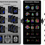 Experimental workflow and generation of Pandora atlases. Data from three repositories (HCP, BLSA, and VU) were curated. Subject-level processing includes tractography and registration to MNI space. Volumetric atlases for each set of bundle definitions is created by population-averaging in standard space. Point clouds are displayed which allow qualitative visualization of probability densities of a number of fiber pathways. Finally, surface atlases are created by assigning indices to the vertices of the MNI template white matter/gray matter boundary.