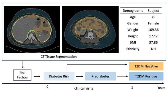 diabetes onset prediction