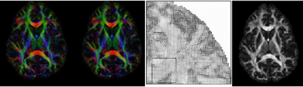 MRI White Matter Reconstruction