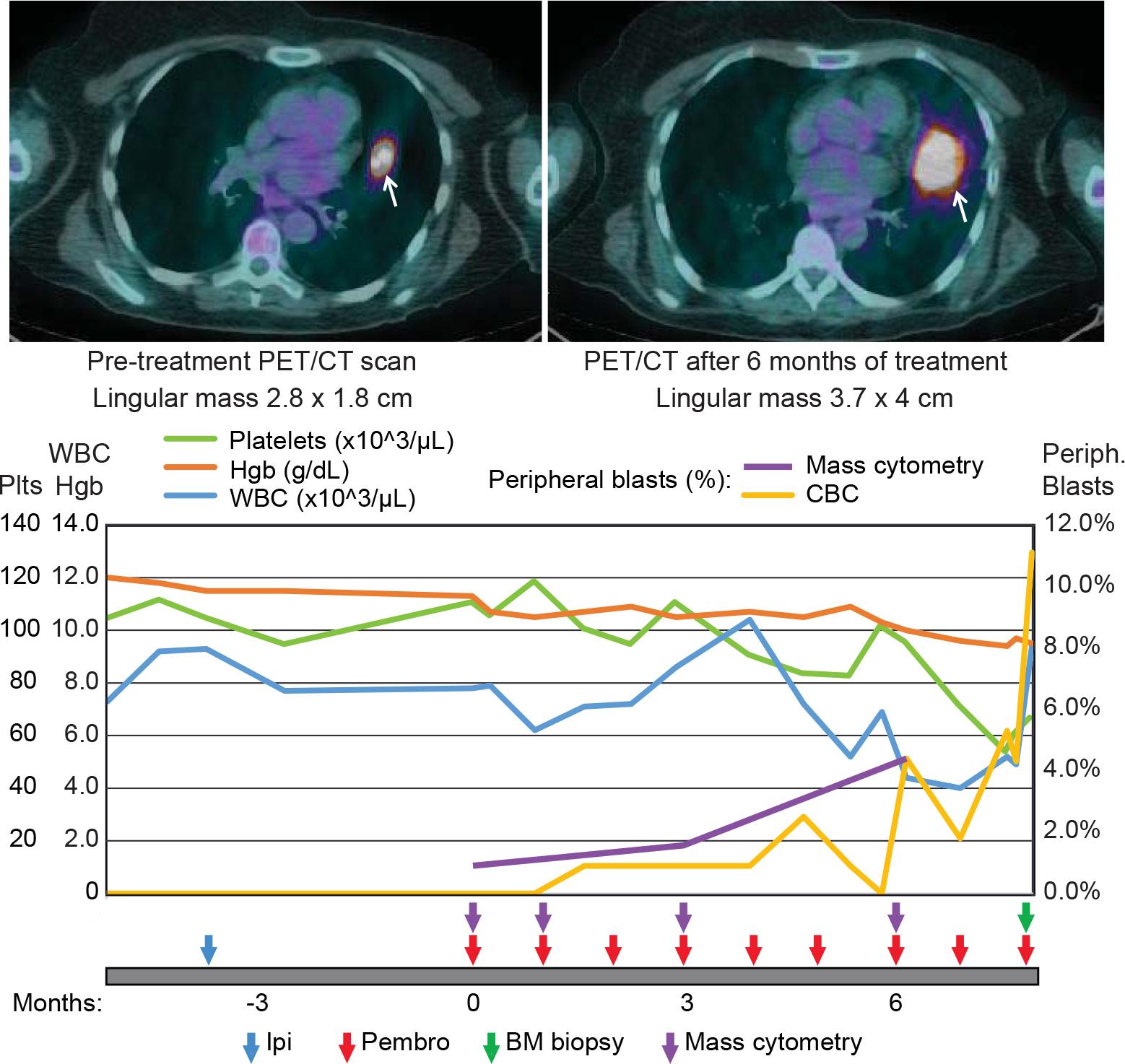 Greenplate et al., Cancer Immunology Research 2016