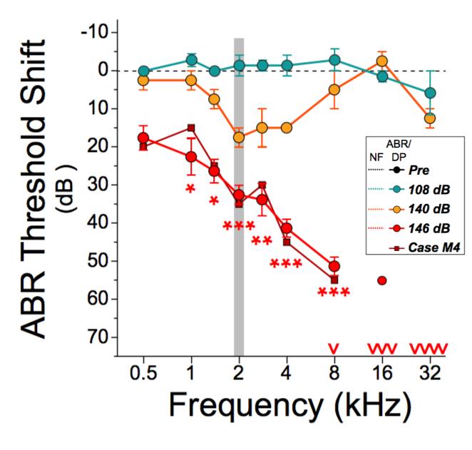 ABR Threshold Shift