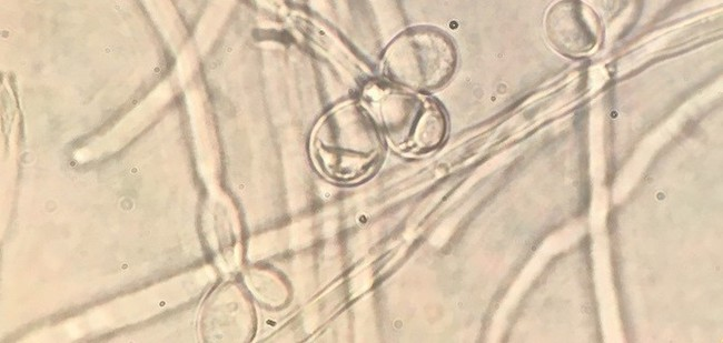 microphotograph of sperm-like cells