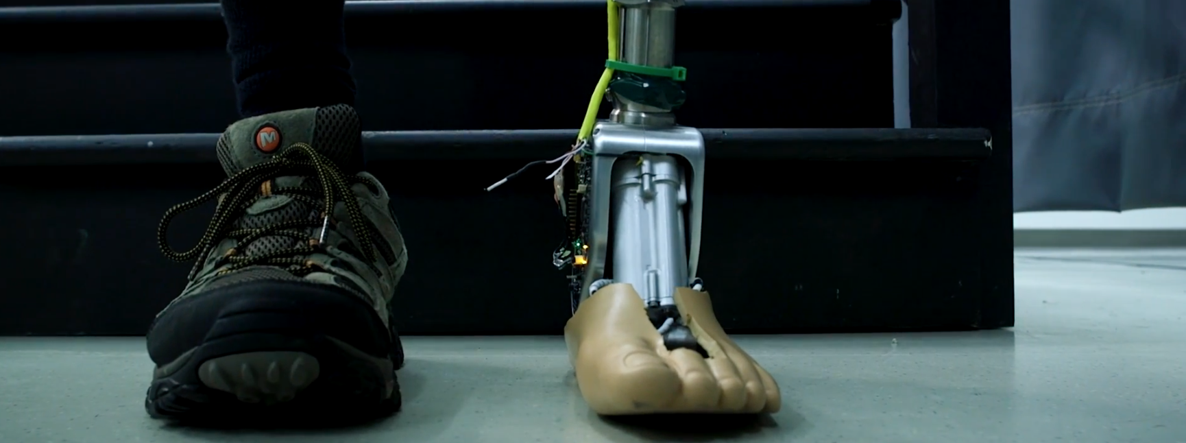 Prosthetic ankle