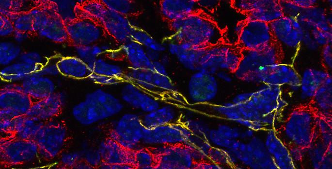 color-enhanced cross section of tumor tissue