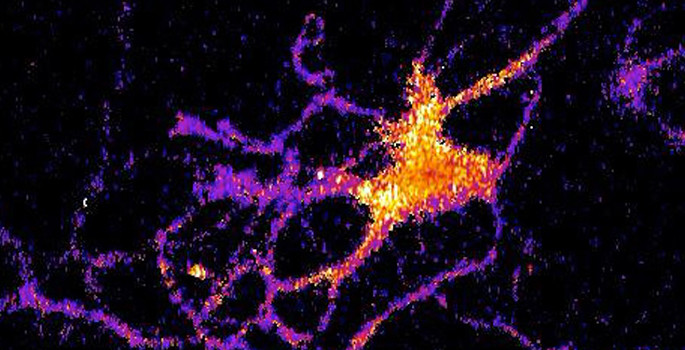 glowing brain cell