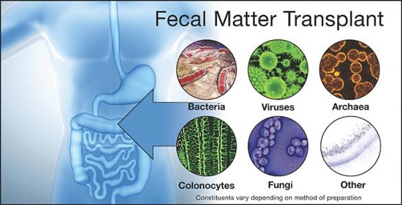 diagram of fecal transplant components