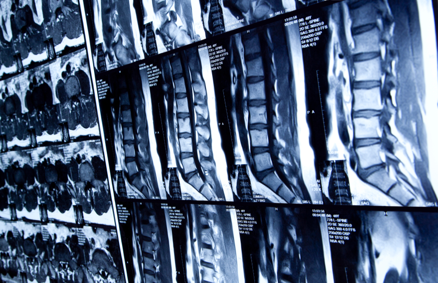 spine x-rays