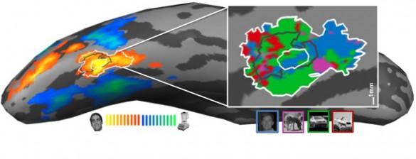 Brain Scan Image Research Vanderbilt