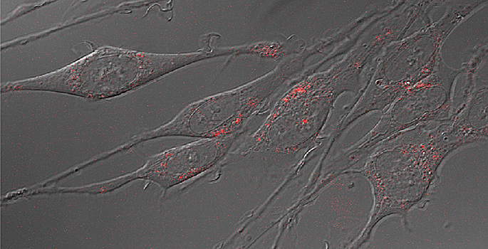 Neurons with serotonin transporters labeled with quantum dots. (Jerry Chang / Vanderbilt)