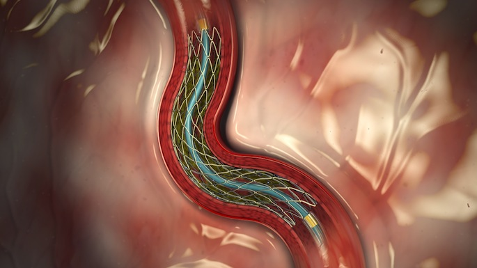 Stent in artery