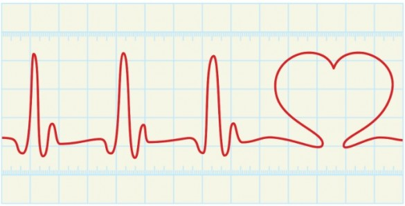 Study points to personal treatment for atrial fibrillation