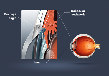 Illustration of glaucoma