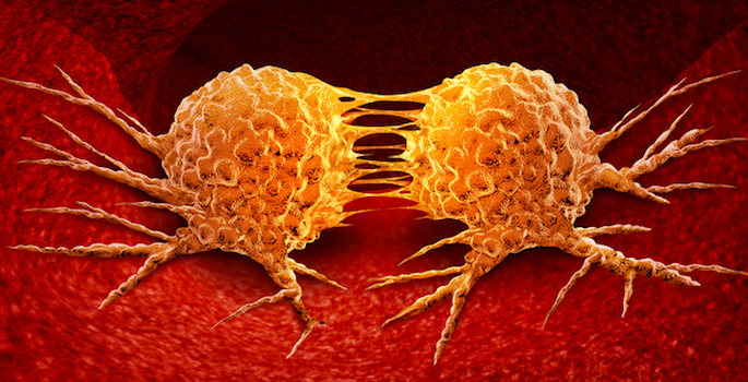 Cellular soldiers designed to kill cancer cells that get loose during surgery, stop metastasis