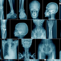 high quality x-ray collection body part and fracture area