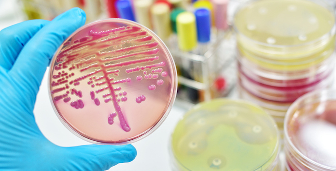Colony of bacteria in red culture material on petri dish held by hand wearing blue glove with other petri dish samples and test tubes in the background