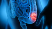 New markers of colorectal cancer risk