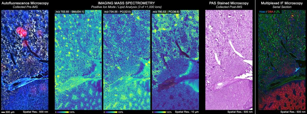 Imaging mass spectrometry data