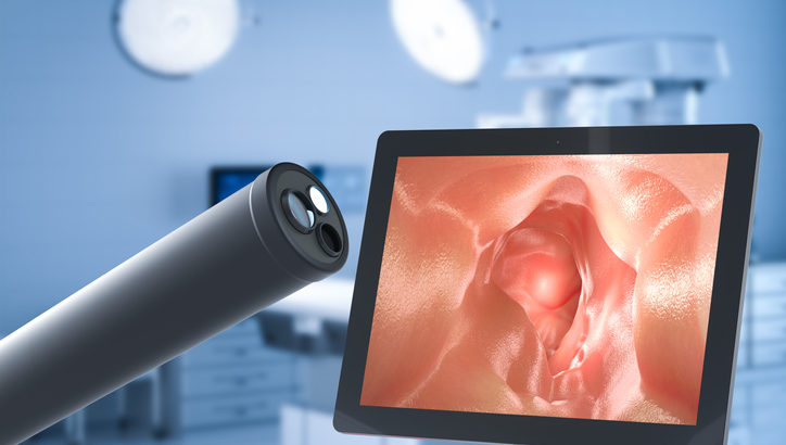 Vanderbilt researchers bring paradigm-shifting technology to endoscopic procedures