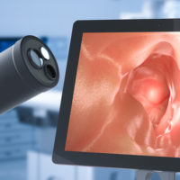 colonoscopy endoscope