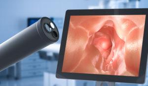 Vanderbilt researchers bring paradigm-shifting technology to endoscopic procedures