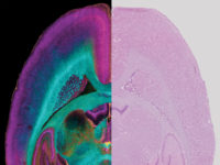 High-spatial resolution mass spectroscopy reveals in bold colors the distribution and concentration of different lipids based on their molecular weight in a rat brain. (IMAGE COURTESY OF PROFESSOR RICHARD M. CAPRIOLI)
