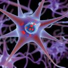 illustration of Parkinson's disease
