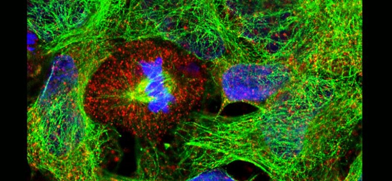 neural stem cells, image courtesy Gama Lab