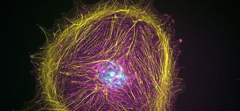 fibroblast cells, image courtesy Lee Lab