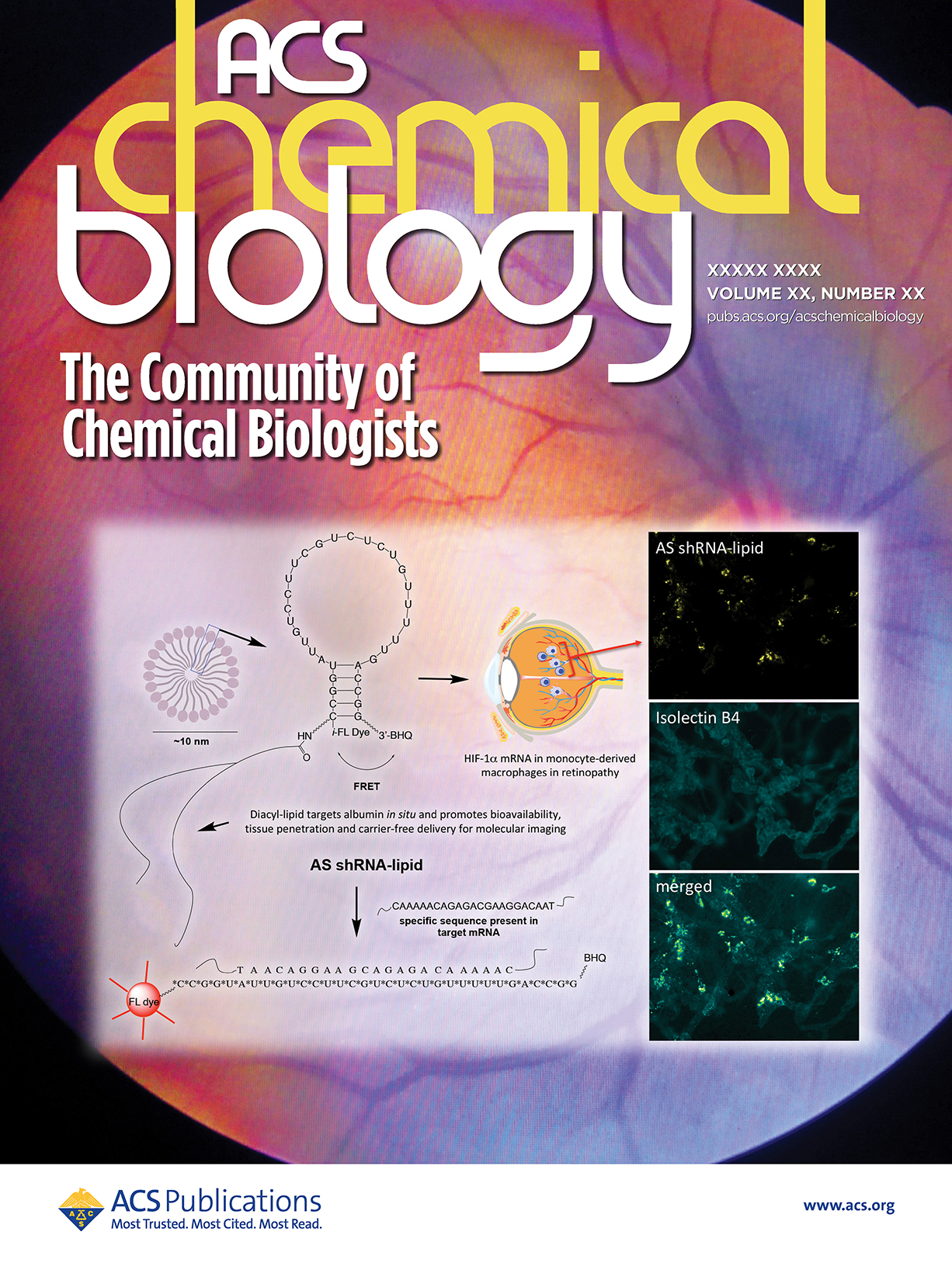 Selective visualization of monocyte-derived macrophages could be a powerful method to predict the onset and progression of ocular-angiogenesis at molecular level. In this report the authors described the synthesis of a new hybrid nanoparticle to visualize HIF-1a mRNA selectively in monocyte-derived macrophages in a mouse model of ocular-angiogenesis (neovascularization).