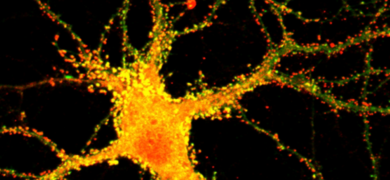 Neurons stained for GluN1+A1