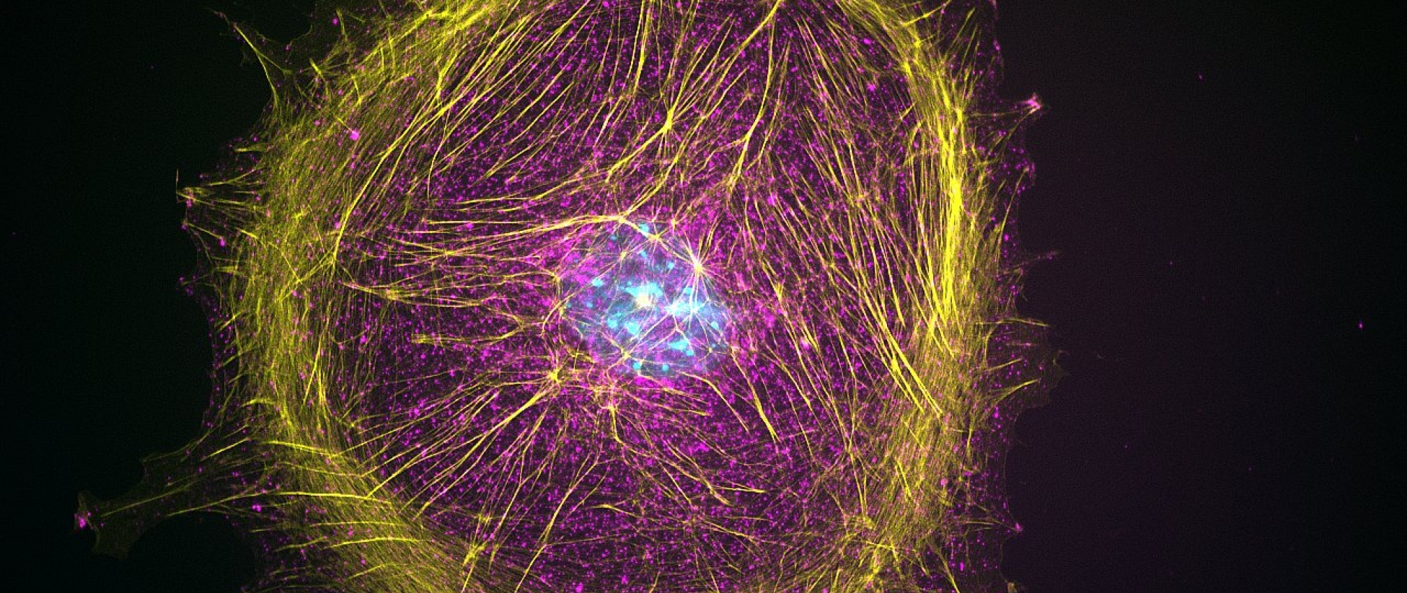 Mouse embryonic fibroblast (MEF) cells stained for beta-catenin (red), actin (yellow), and DNA (blue).