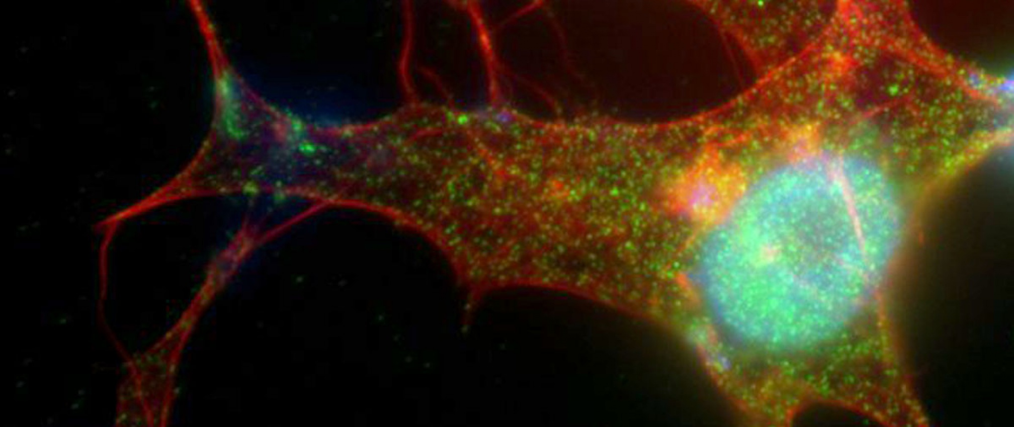 Retinal pigmented epithelial (RPE) cells are highly responsive to Wnt ligand stimulation. Intense beta catenin (green) localization in the nucleus (blue) is observed upon treatment with Wnt3A. Actin is labeled in red.