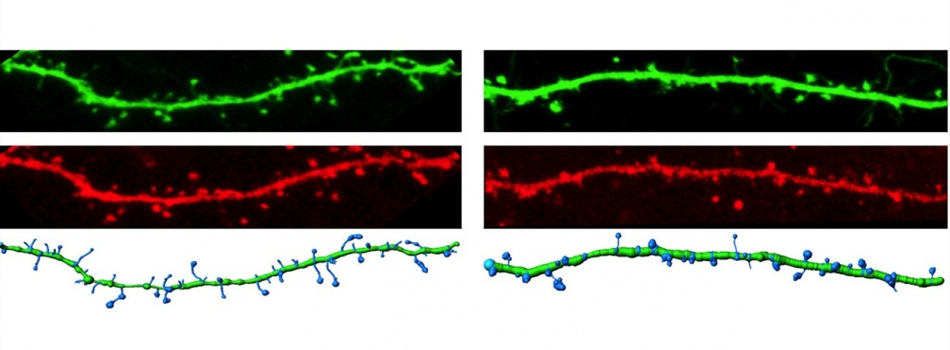 Filled dendrites (green) from neurons expressing wild type CaMKII or the ASD-linked E183V mutant (red; left, right, respectively), with a computerized reconstruction highlighting the dendritic spines (Jay Stephenson, Postdoc, Colbran Lab)