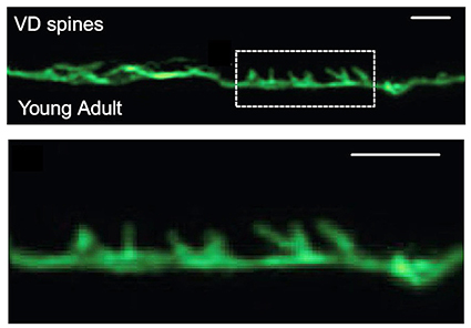 "Two fluorescence microscopy images. On top, a stringy-looking neuron (green) laid out horizontally across the screen. Text on the image says ""VD spines"" and ""Young Adult."" A box with dashed lines indicates the area shown in the bottom portion, which is enlarged. It clearly shows the main body of the neuron with short spiny protrusions coming out the top. Scale bars are 1 µm."