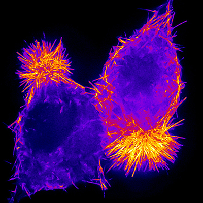Fluorescence image of two human epithelial cells (bright purple) with their apical ends pointing in opposite directions. You can see the highest concentration of orange (actin) in rods on their apical sides (very vivid), and some orange rods along the outside border of the cells (less vivid).
